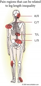 Skeleton Showing Leg Length Discrepancy Pain Regions