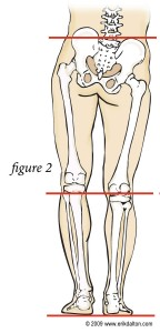 Skeleton Showing Leg Length Discrepancy Symptoms