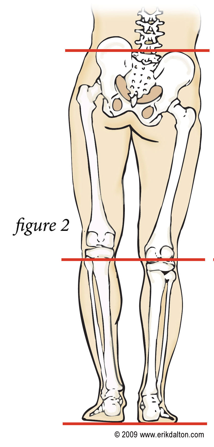345a2244df If you answered yes to any of these questions you may have one leg shorter  than the other ...